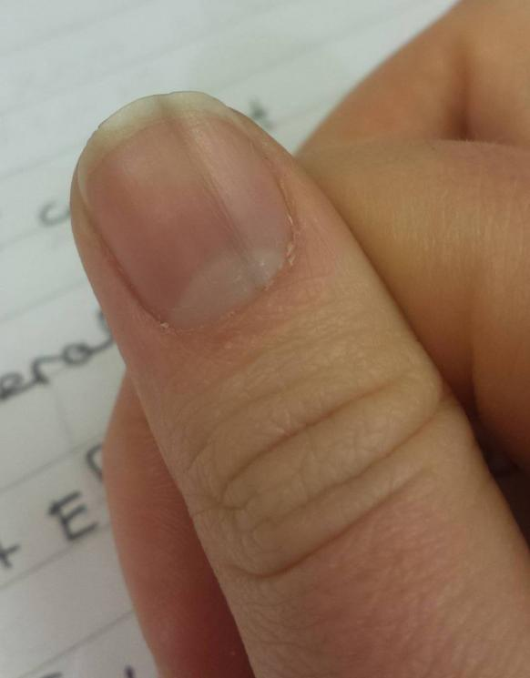 Dark line down my thumb nail | Cancer Chat