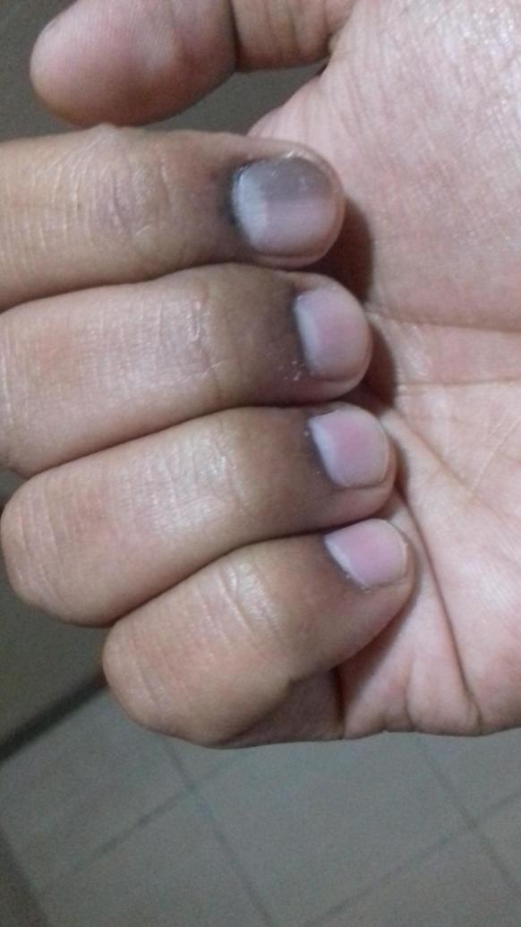 Dark discolouration under index finger nail | Cancer Chat