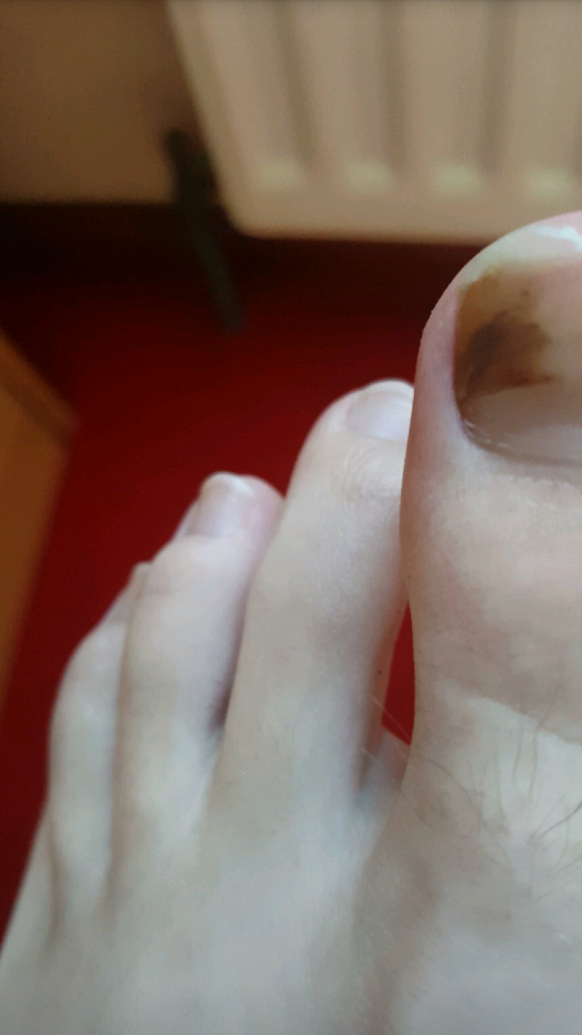 I M A 15 Year Old White Boy Who Has Had Black Brown Spot In My Toe For About And Half Now After Bit Of Research The Only Thing