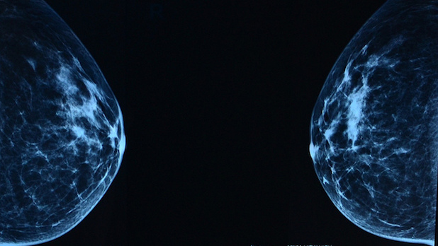 why women generally get breast cancer Younger women usually don't think about getting breast cancer after all, under 7% of all breast cancer cases happen in women under 40 but it can happen at any age.