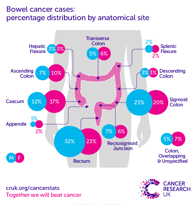 Bowel Cancer Incidence Statistics Cancer Research Uk