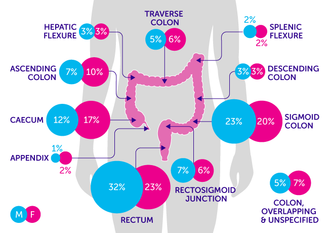Bowel cancer incidence throughout the body