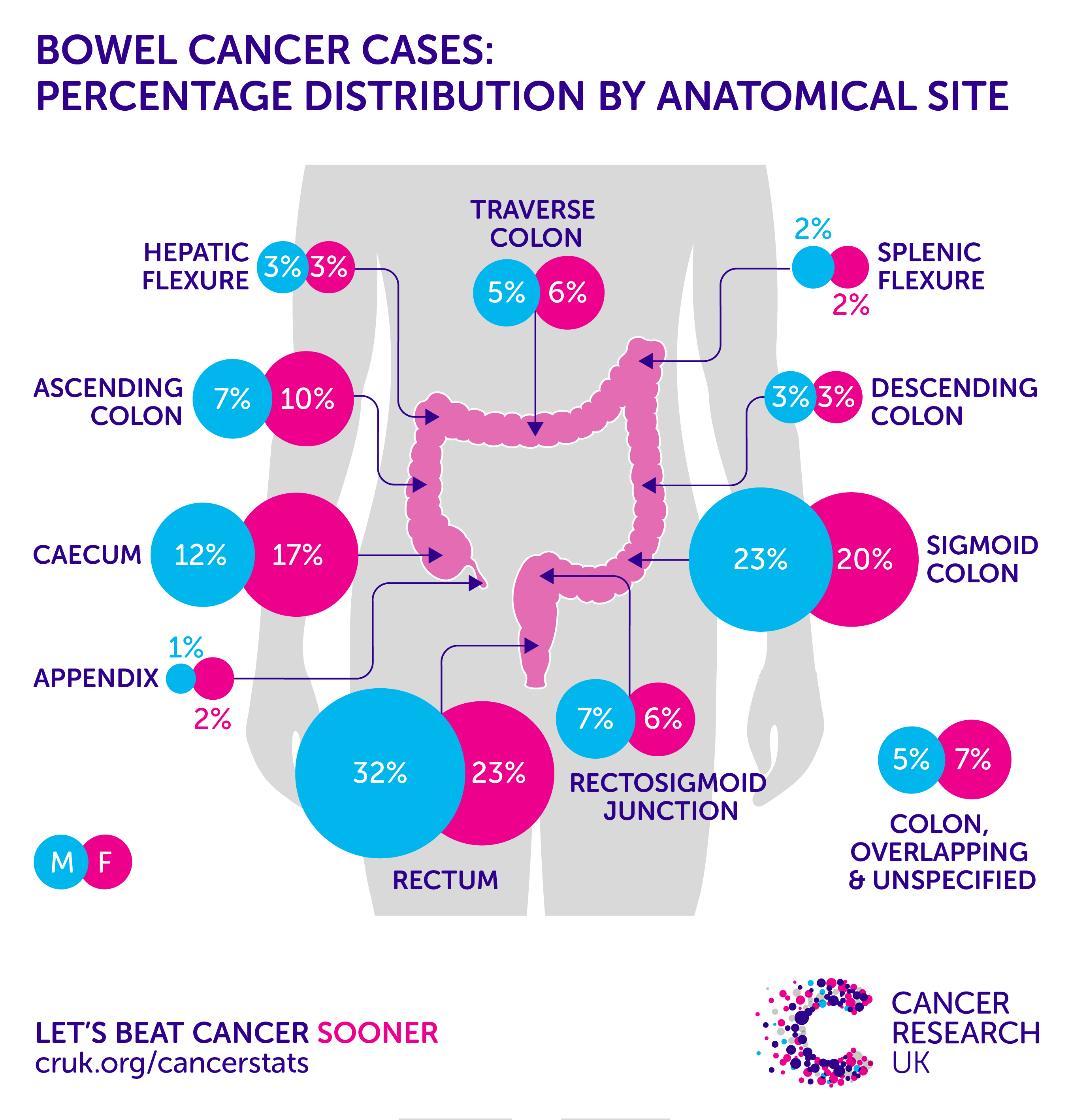 Anal cancer uk