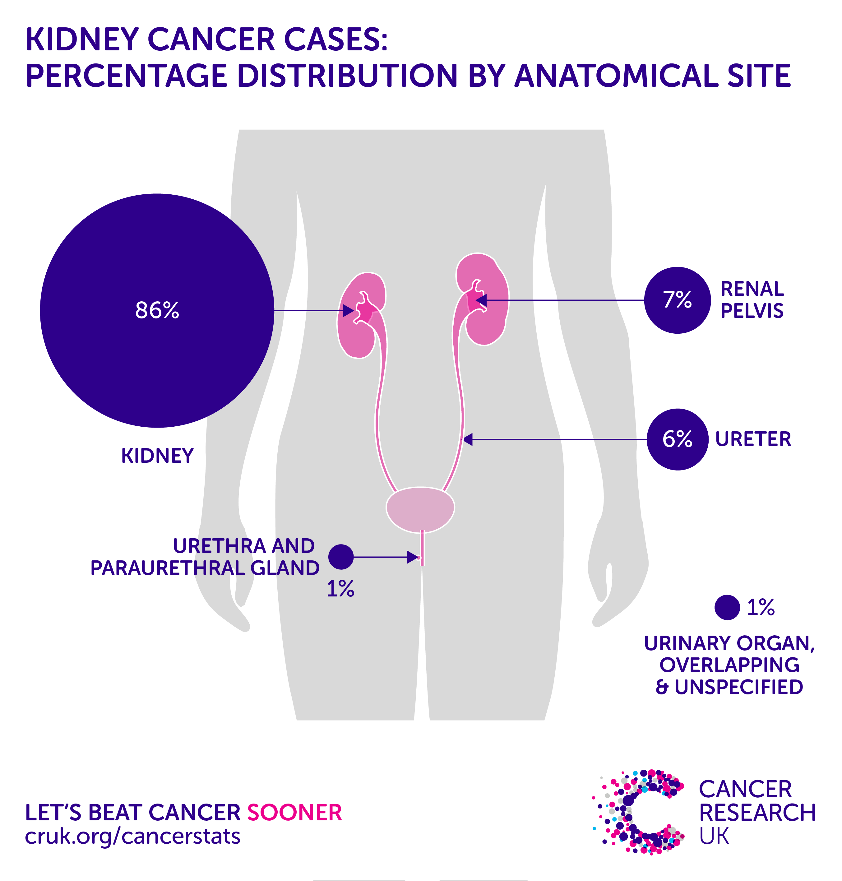 An Unexpected Kidney Cancer Diagnosis forecast
