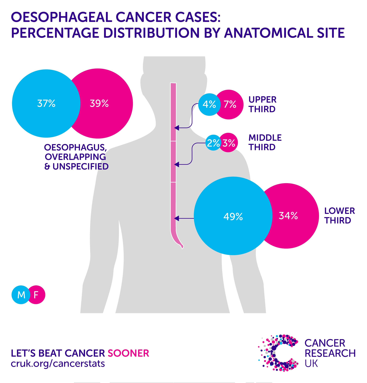 Brystkræftstatistik i Storbritannien Porno 3Gp Mobile-6040