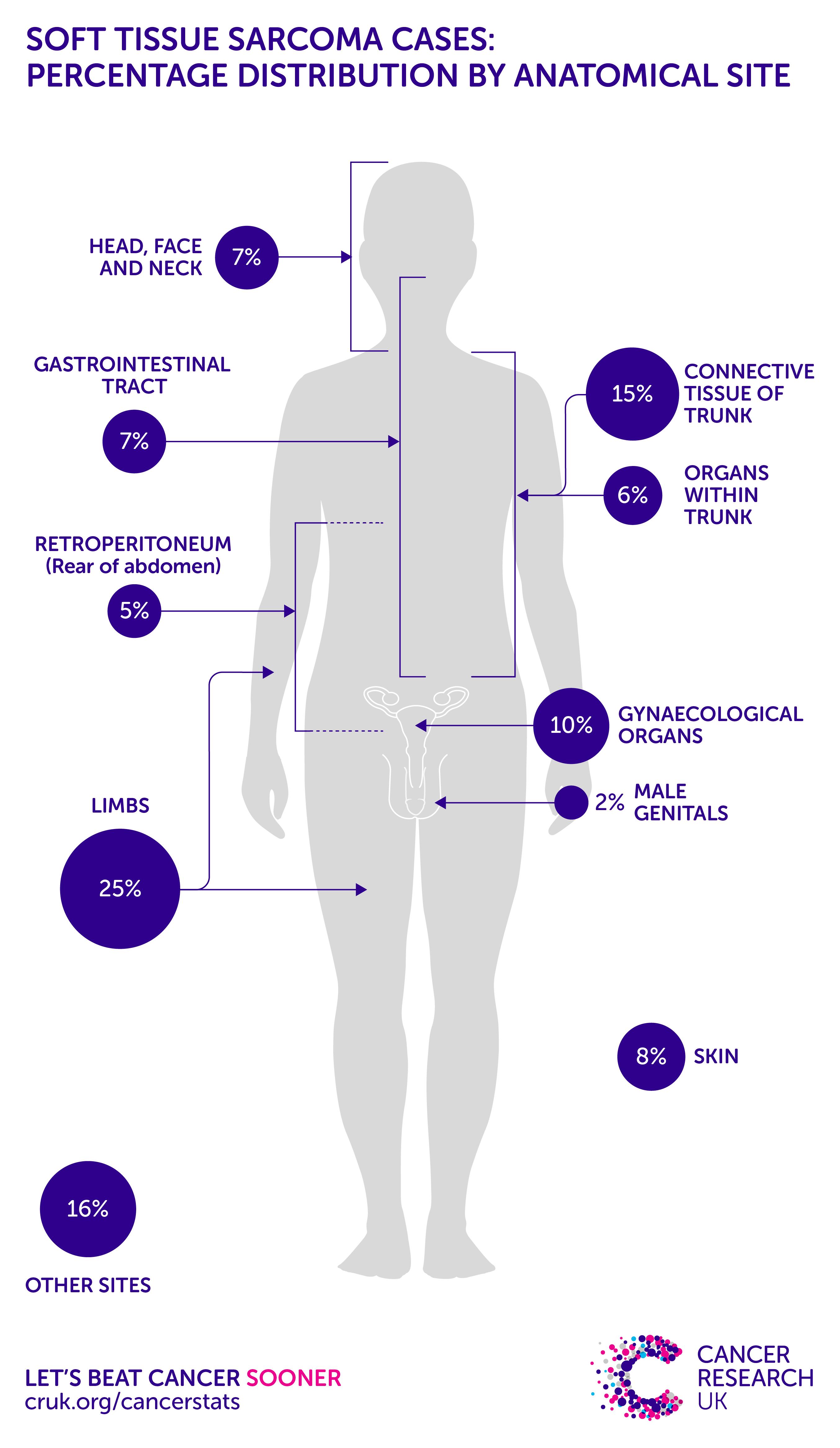 sarcoma cancer prevalence