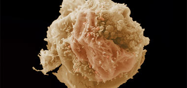 A microscope image of a breast cancer cell