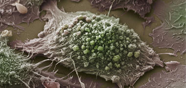 A microscope image of a lung cancer cell
