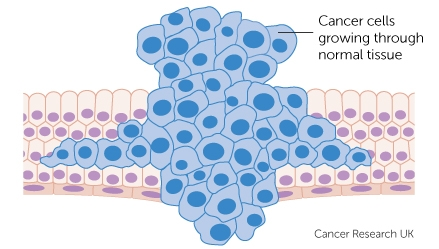 cancer cells growing through normal tissue diagram