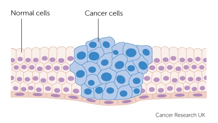 what is cancer? cancer research ukcancer cells growing diagram