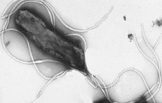 Microscope image of h. pylori bacterium