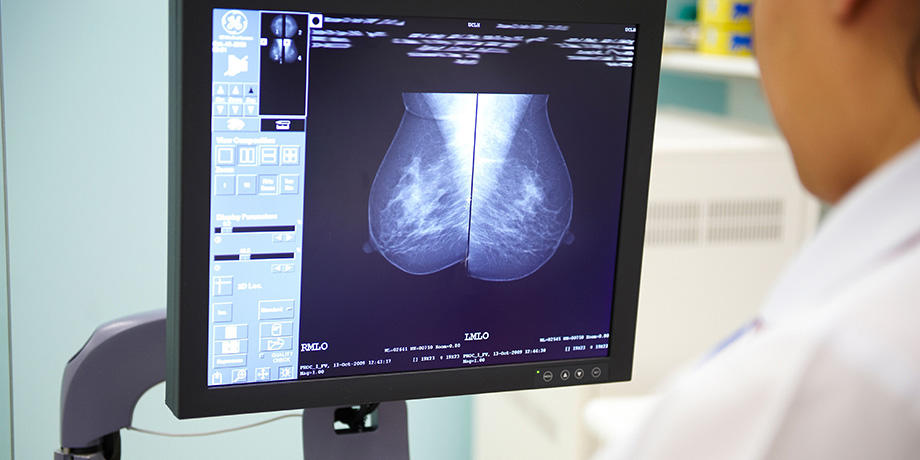 Radiographer looking at mammogram image