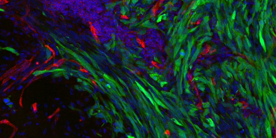 GFP-labelled tumour cells invading normal brain along blood vessels