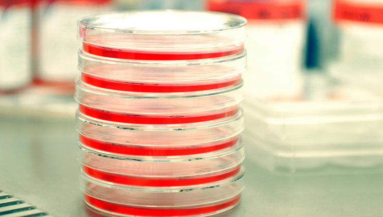 A stack of petri dishes