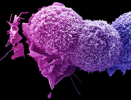 Lung cancer cells under a powerful microscope