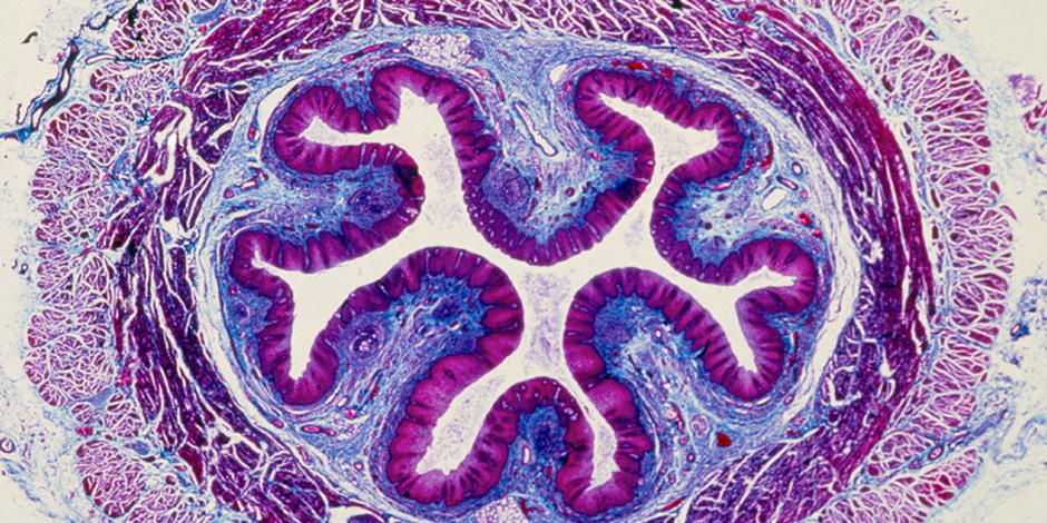 Microscopic photo of a cell
