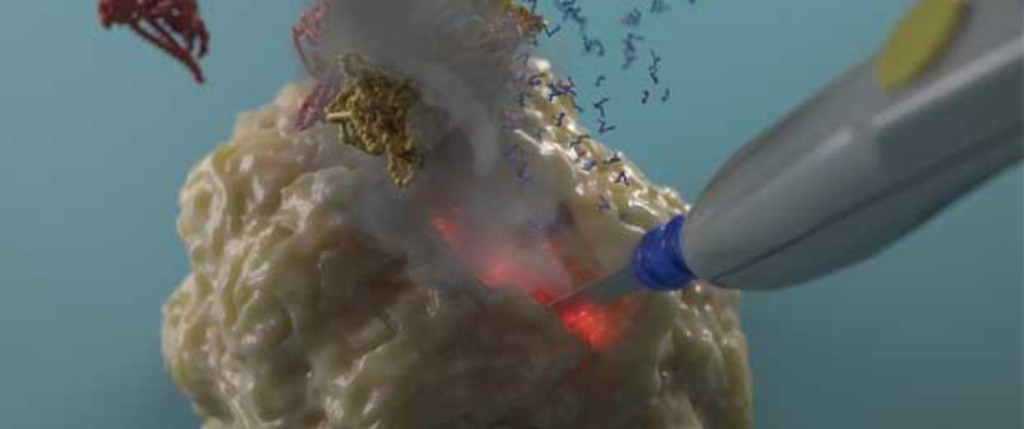 iKnife being used to examine tumour