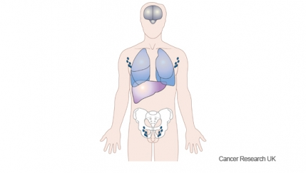 Diagram showing where cancers can spread