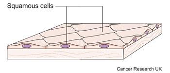 Diagram of squamous cells