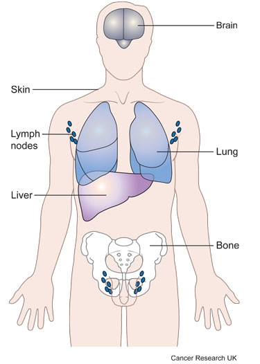 Diagram showing where in the body cancer tends to spread