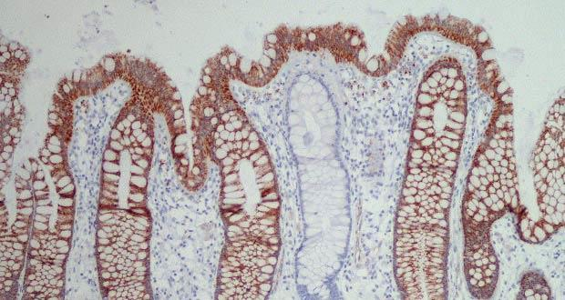 Section of human colon.