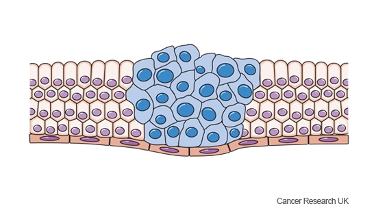 Diagram showing cancer cells