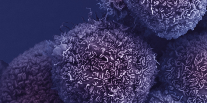 Pancreatic cancer cells - CRUK London Research Institute, Electron Microscopy Unit