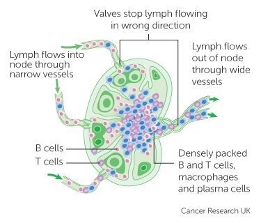 The lymphatic system and cancer cancer research uk a lymph node ccuart Gallery