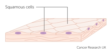 diagram of squamous cells_0?itok=t_J I5jx types of cancer cancer research uk load cell diagram at fashall.co