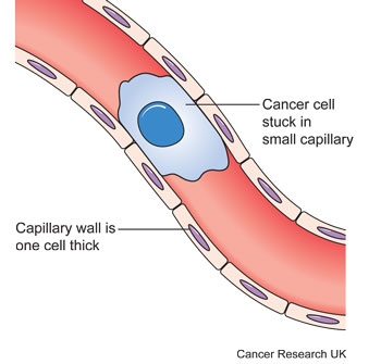 Diagram showing a cancer cell stuck in a small blood vessel