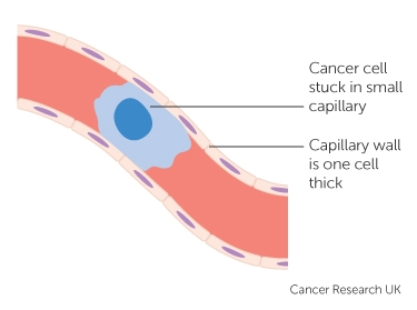 a cancer cell stuck in a small blood vessel capillary