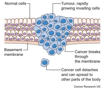 Diagram showing a malignant tumour
