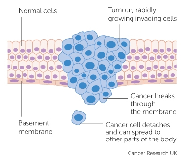 How cancer can spread cancer research uk a malignant tumour ccuart Images