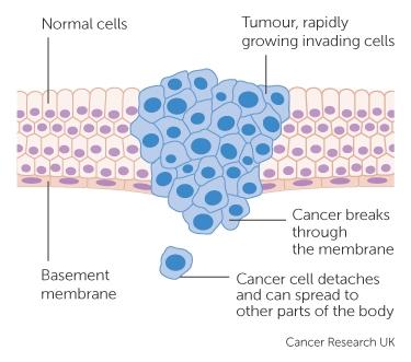 un tumore maligno