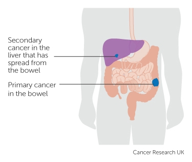 a primary and secondary cancer