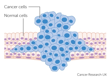 How cancers grow cancer research uk tumour forcing its way through normal tissue ccuart Images