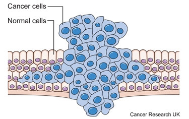Diagram showing a tumour forcing its way through normal tissues