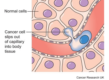 Diagram showing how cancer cells get into the bloodstream