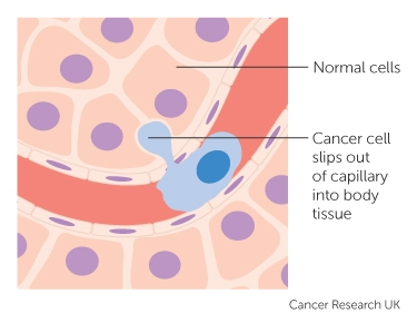 How cancer can spread | Cancer Research UK
