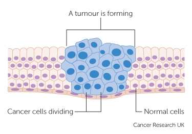 Cancer cells cancer research uk how cancer cells keep on reproducing to form a tumour ccuart Images