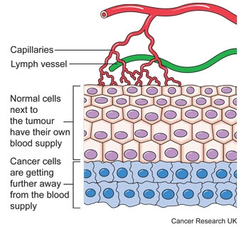 Diagram showing why cancer cells need their own blood supply
