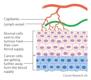 brain cancer cell diagram wwwpixsharkcom images