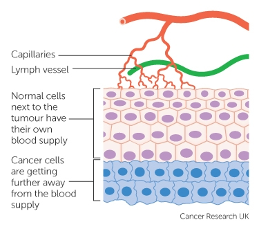 How cancers grow cancer research uk why cancer cells need their own blood supply ccuart Images