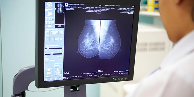 Radiographer looking at mammogram image