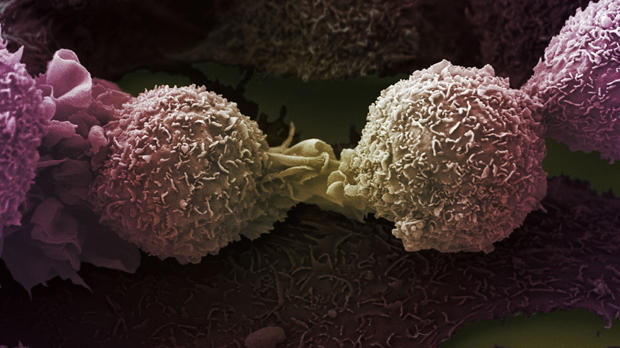 electron microscopy image of two lung cancer cells