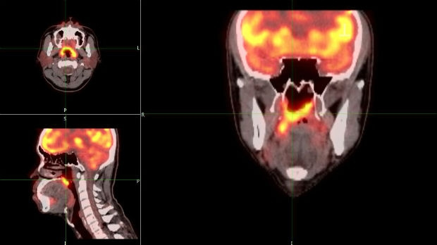 PET Scan head and neck for nasopharynx carcinoma
