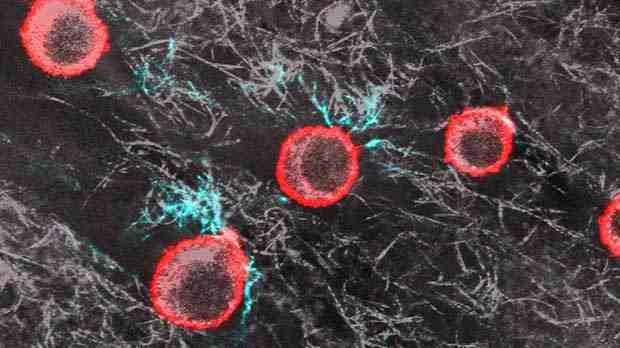 Melanoma cells