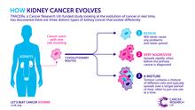 Kidney cancer evolution