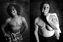 Stand Up To Cancer mastectomy portraits.