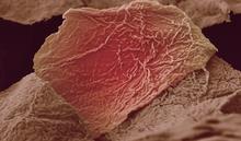 Skin burn damage
